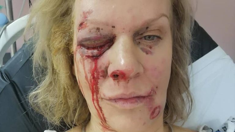 Amber Lewis lost an eye after a firework exploded in her face