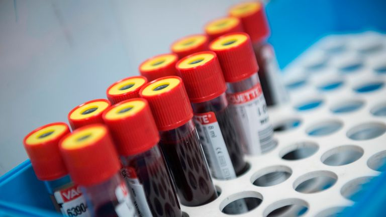 Tubes of blood samples wait to be tested for the novel coronavirus at the Povisa hospital in Vigo, northwestern Spain, on May 14, 2020. - Only five percent of Spain's population has been infected by the novel coronavirus, though that figure climbs to more than 10 percent in Madrid and areas in the centre of the country, according to a study released by the government. (Photo by MIGUEL RIOPA / AFP) (Photo by MIGUEL RIOPA/AFP via Getty Images)