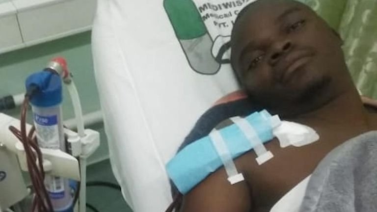 Mr Muchehiwa suffered cuts on his chest, skin from his right buttock had been removed and his kidneys were barely functioning