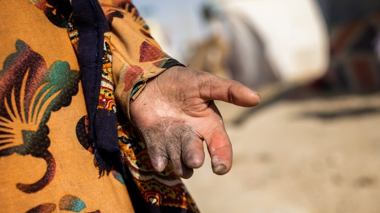 Shogofa's hand was injured when a rocket hit her home. Pic: 