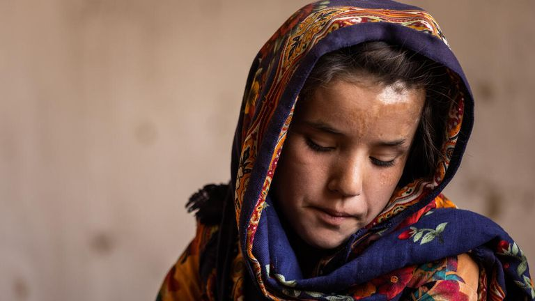 Shogofa was critically wounded in a rocket attack on her home. Pic: Jim Huylebroek/Save The Children