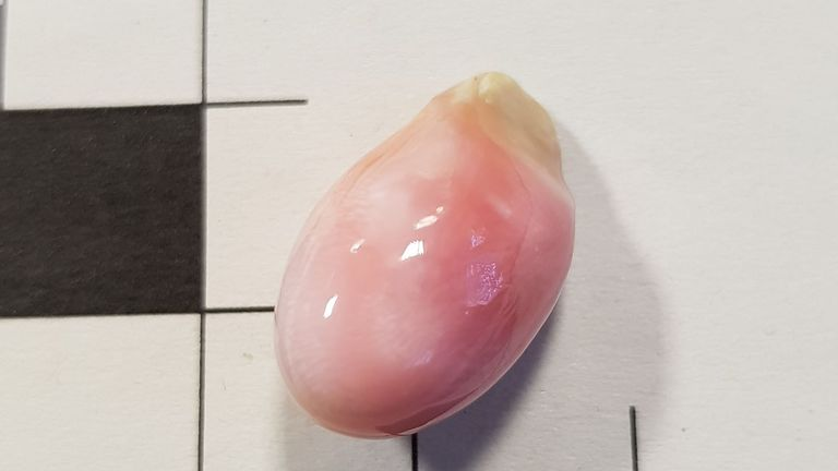 A queen conch pearl