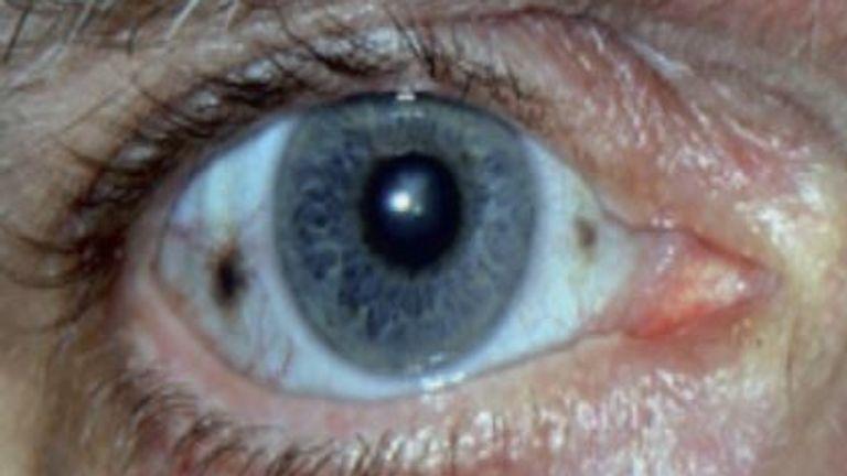 Alkaptonuria, or AKU, is sometimes known as 'black bone disease' (Pic: NHS)