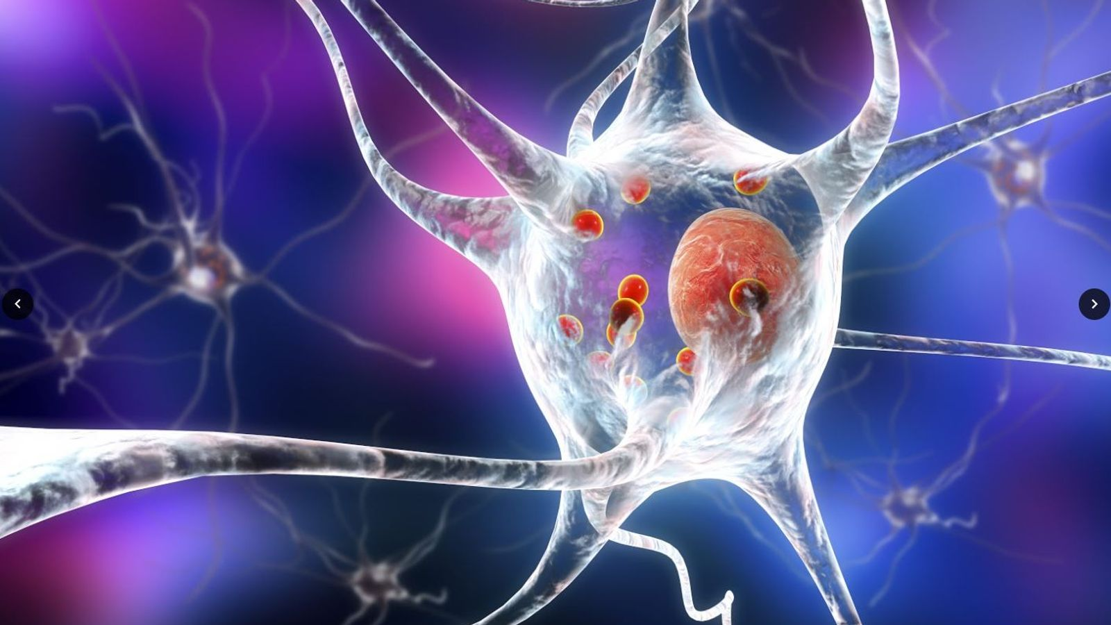 Parkinson's illness: Scientists take 'very important step' in direction of discovering a treatment