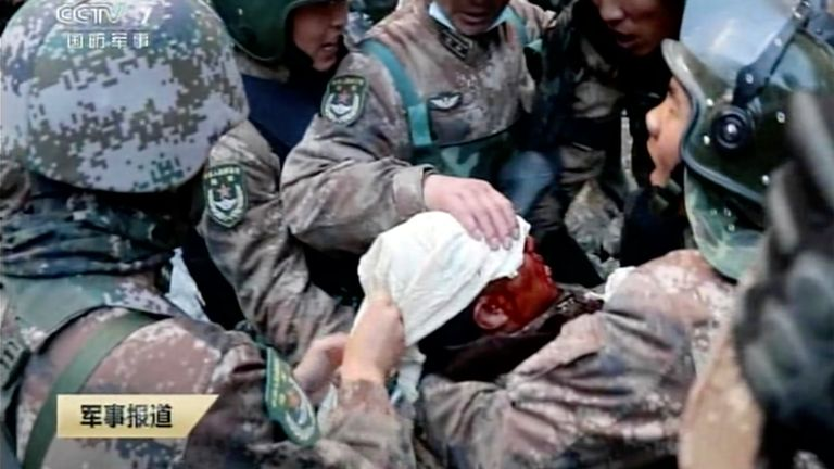 Soldiers bandage the head of China's People's Liberation Army (PLA) regimental commander Qi Fabao