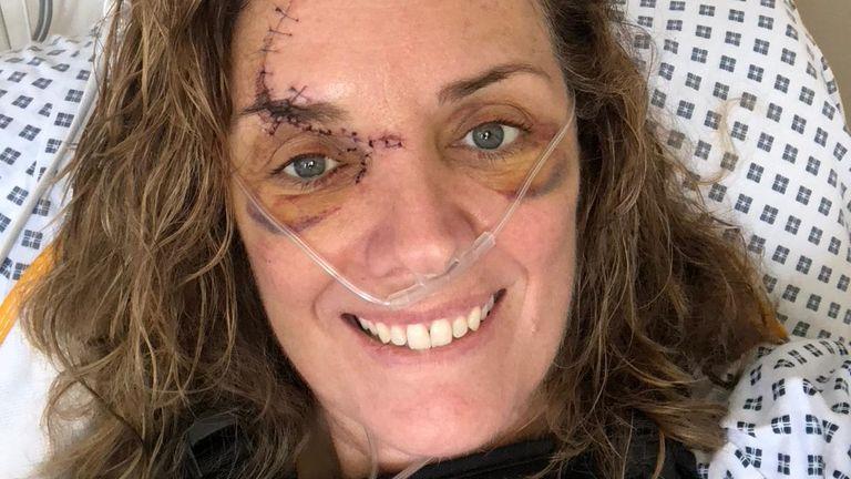 Ms Munroe was in a car crash 18 months ago