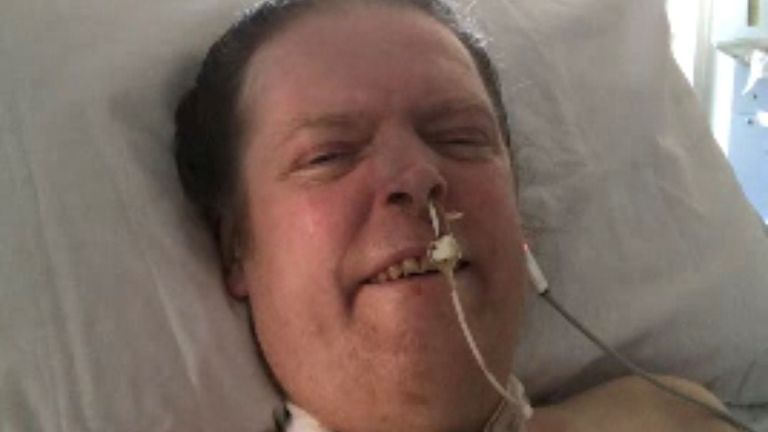 Jason Kelk has been using a ventilator since April last year after contracting COVID-19. Pic: Sue Kelk