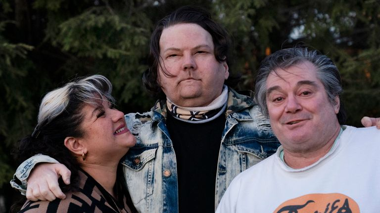 """Joe DiMeo stands with his parents Rose and John in the backyard of their home in Clark, N.J., Thursday, Jan. 28, 2021, six months after an extremely rare double hand and face transplant. """"In the future, I have a lot more plans for myself,"""" he said. """"You got a new chance at life. You really can't give up."""" (AP Photo/Mark Lennihan)"""