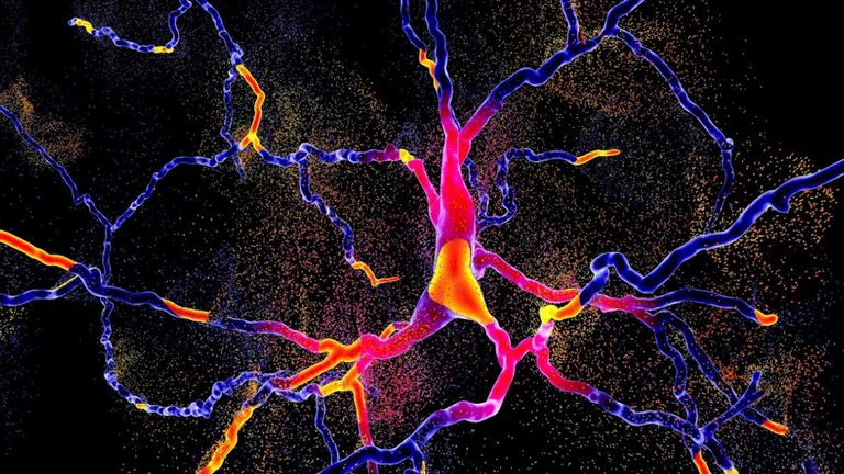 An illustration of the degeneration of dopaminergic neurons, brain cells responsible for voluntary movement and behavioural processes such as mood Pic: Kateryna Kon via Shuttercock