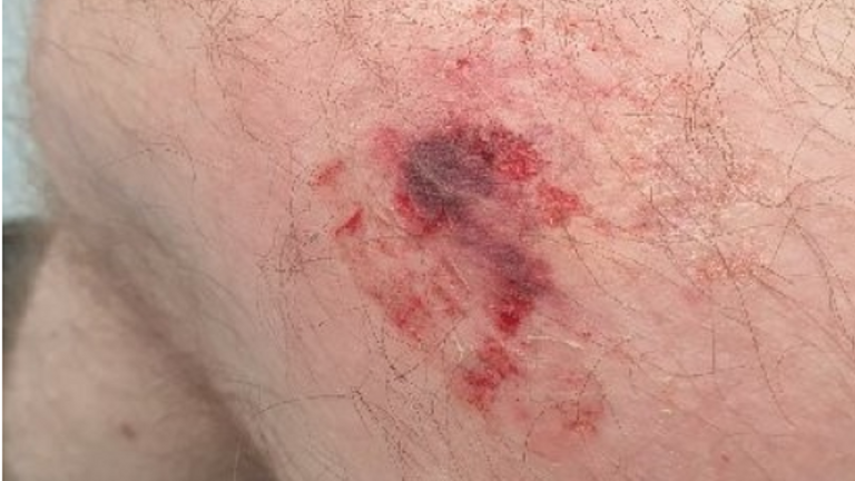 A special constable aged 69 was bitten several times, and had skin ripped from his arms during a raid in Harpurhey, Manchester. Pic: GMP Twitter