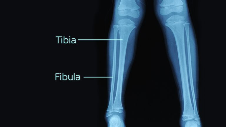 Woods's open fractures affect both the upper and lower portions of the tibia and fibula bones. File pic