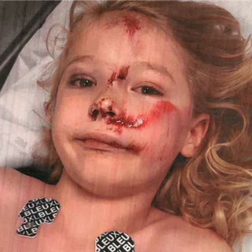Sister of boy, 6, who had skull fractured by e-scooter rider calls for under-21 ban