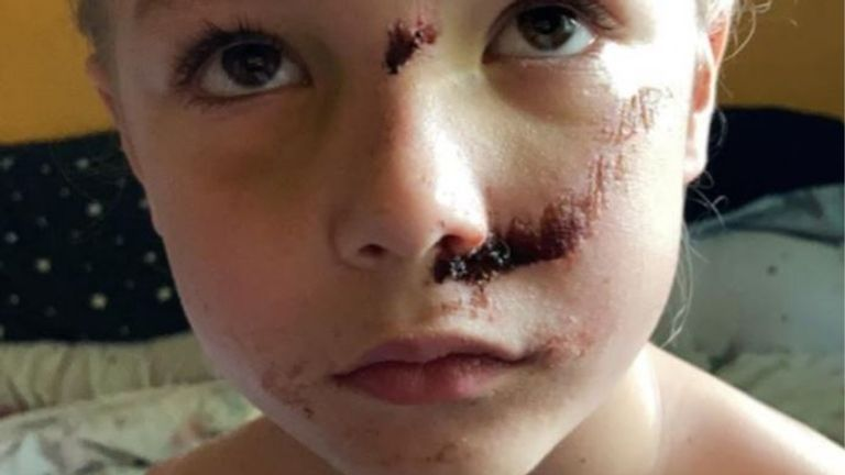 Six-year-old Jamie Smith suffered a fractured skull after being hit by an e-scooter rider. Pic: Leicestershire Police