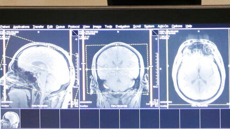 """This photo taken April 19, 2013 shows former Detroit Lions quarterback Eric Hipple undergoes an MRI on his brain in Detroit. Months before the NFL and former football players agreed to settle their concussion-related lawsuits, a Detroit-based neurologist began what he calls a """"landmark study"""" on the brains of 50 former players. (AP Photo/Paul Sancya)"""