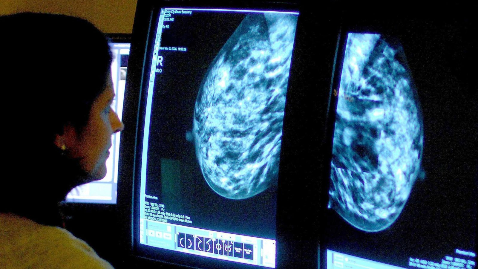New breast cancer jab cuts treatment time from two-and-a-half hours to five minutes