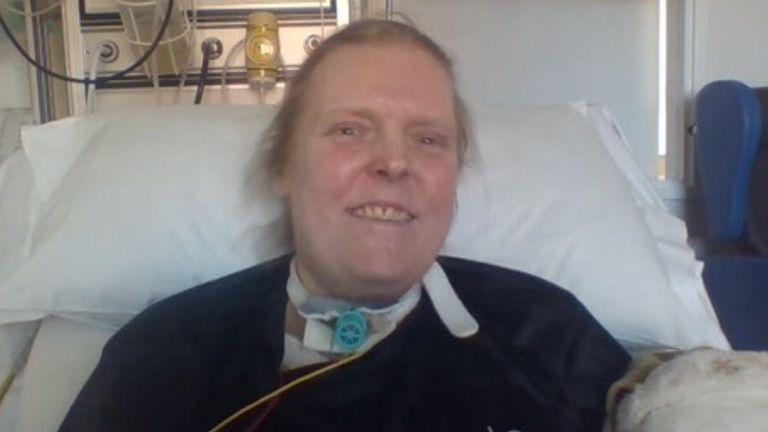 جیسون کلک بیش از 13 ماه را در مراقبت های ویژه در St James & # 39؛  بیمارستان در لیدز پس از ابتلا به COVID-19 در سال گذشته.  عکس: سو کلک