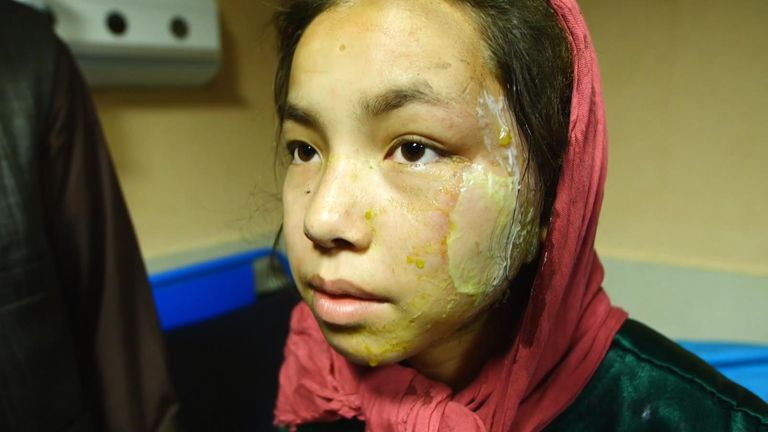 Malika, 17, caught up in a car bomb outside her Sayed Al-Shuhada school in Kabul