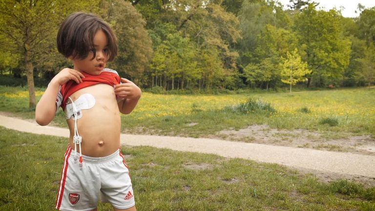 Ryan has a Hickman line attached to his chest