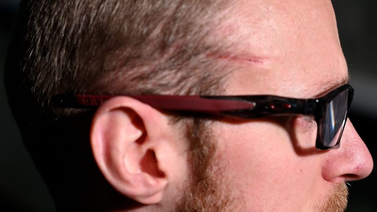 The officer has been left with a scar on his face.  Pic: Northamptonshire Police