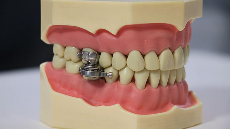 The device is fitted to the first molars top and bottom
