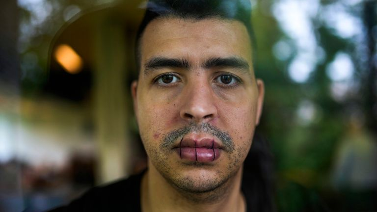 A man from Morocco, no name given, with his lips sewn together and on hunger strike poses for a photo as he occupies with others a big room of the ULB Francophone university in Brussels, Tuesday, June 29, 2021. More than two hundreds of migrants without official papers and who have been occupying a church and two buildings of two Brussels universities since last February, began a hunger strike on 23 May to draw the attention of Brussels authorities to their plight. (AP Photo/Francisco Seco)