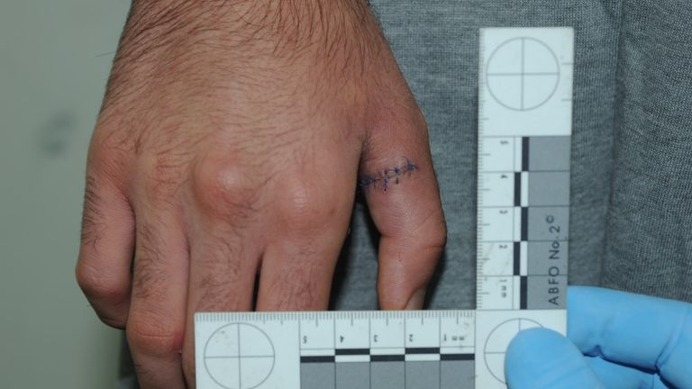 Another photo shown in court shows a cut on Hussein's hand following his arrest