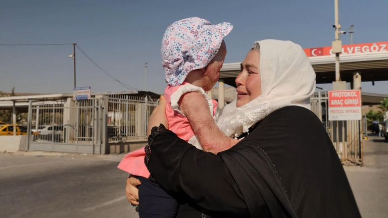 A terribly burned Syrian toddler has finally been reunited with her mother and siblings six months after being rushed to Turkey for emergency medical treatment.