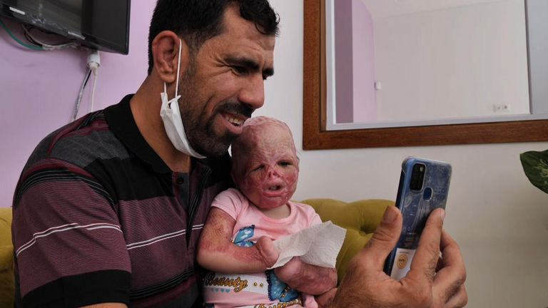 Dalal and her dad Facetime their family before they are finally reunited six months after she was rushed to Turkey for emergency medical treatment.