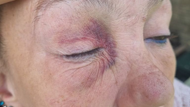 Ms Murphy was left with a black eye and raised cheek. Pic: Danielle Willisford