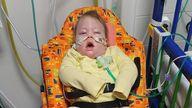Alta had a brain injury at birth