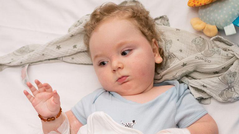 """Marley Powell se rétablit à l'hôpital pour enfants de Sheffield après avoir reçu le """"médicament le plus cher du monde"""", le traitement génétique Zolgensma.  Photo date : mercredi 15 septembre 2021."""