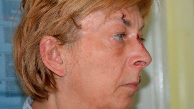 This undated photo provided by Croatian police shows an unidentified woman who was found on the Adriatic island of Krk on Nov. 12, 2021. Croatian police said Tuesday they are still working to establish the identity of a woman found over a week ago at a northern Adriatic Sea island with no recollection of who she is or where she came from. Police told the Associated Press they are searching the terrain and conducting numerous interviews with residents and tourists or anyone who has information about the woman discovered on the island of Krk on Sept. 12. (Croatian Police via AP)