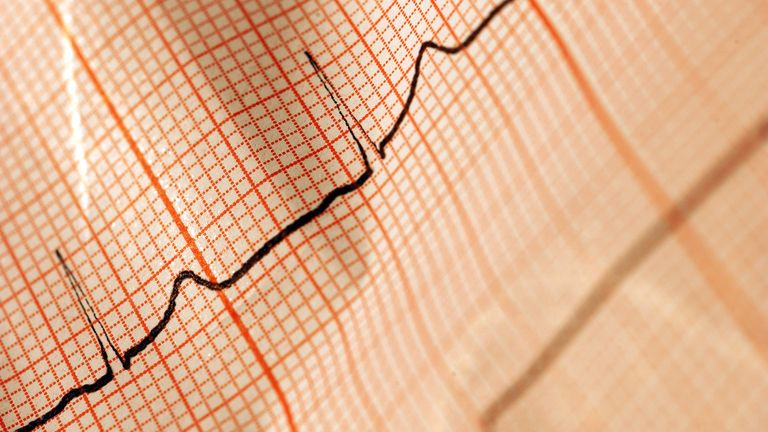 The printed out diagram of an electrocardiogram (ECG) is pictured in Germany, 2007. Photo by: Alice Mikyna/picture-alliance/dpa/AP Images