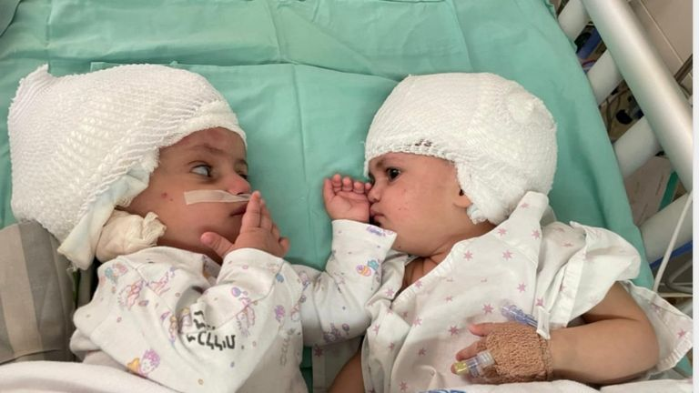 Born conjoined back-to-back Israeli twins finally see each other after surgery