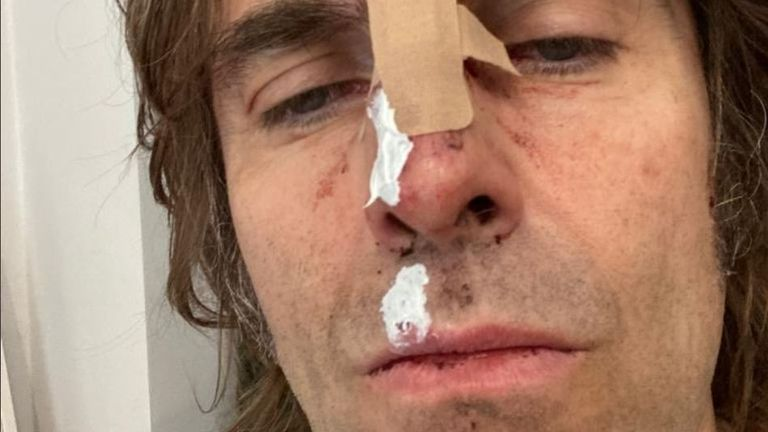 Liam Gallagher has claimed he fell out of a helicopter following his headline set at the Isle Of Wight Festival. Pic: @liamgallagher