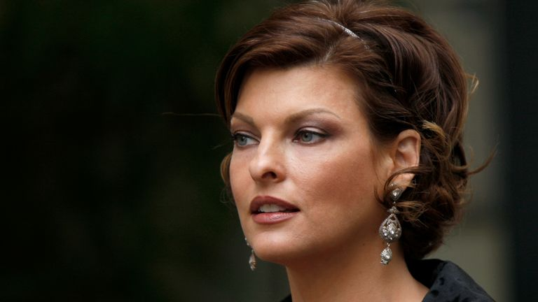 """The supermodel has opened up about her cosmetic procedure that left her """"permanently deformed"""""""