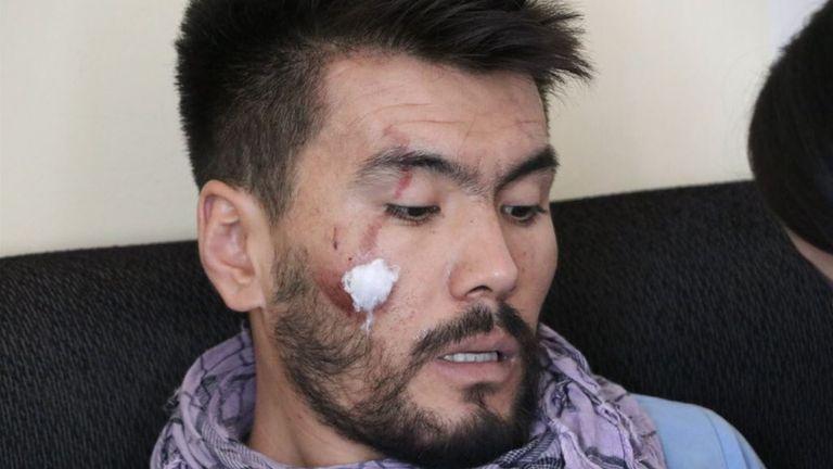 Journalist Nemat Naqdi was beaten badly by Taliban authorities for reporting protests in Kabul. Pic: Zaki Daryabi
