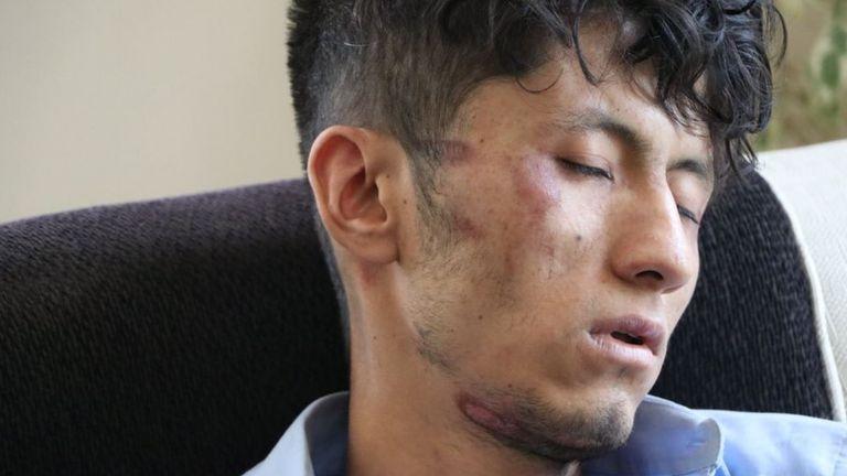 Taqi Daryabi was also detained and beaten up by Taliban authorities. Pic: Zaki Daryabi