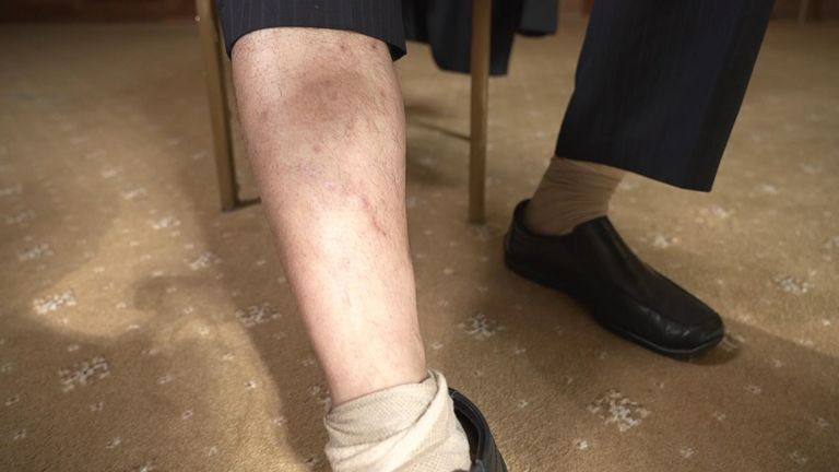 Mr Otarbay shows the scar on his leg from where he was dragged in shackles